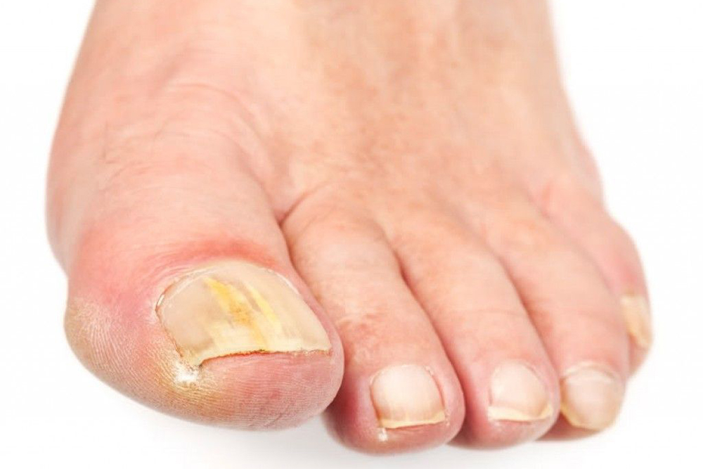 How long does a fungal toenail infection last? | Do Tobell