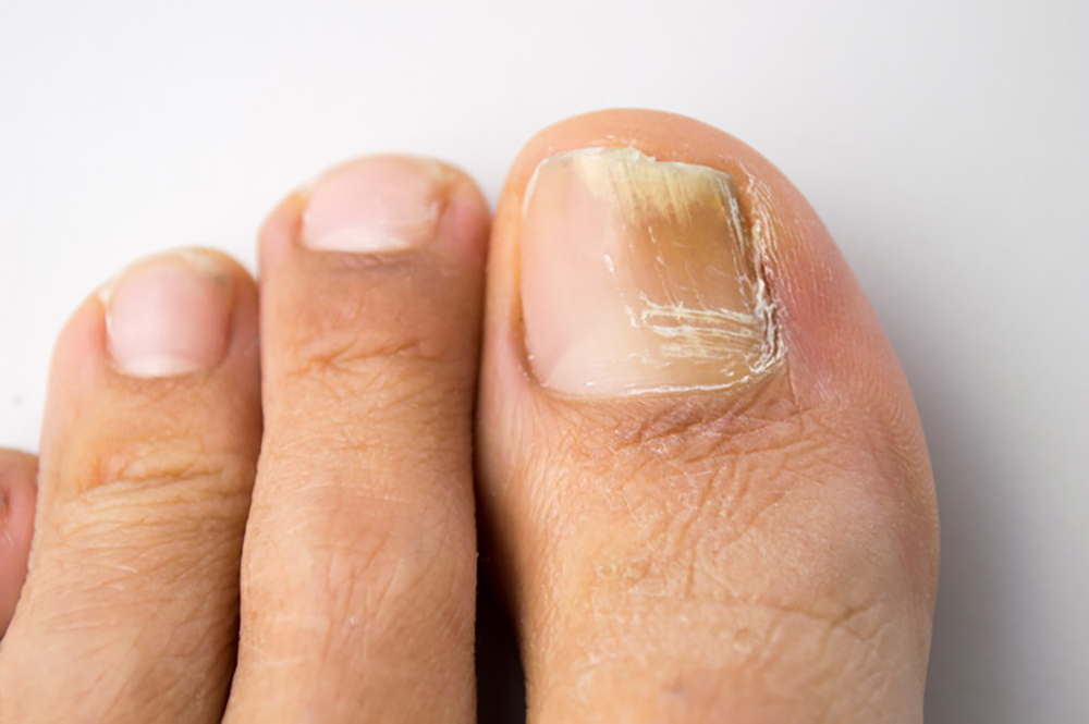 You're not sure on how to treat fungal toenail infections?